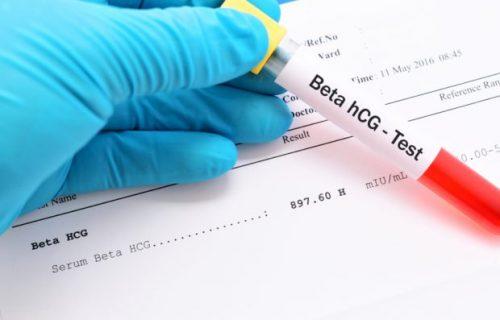 آزمایش خون بارداری | آزمایشگاه آنلاین آزماتو