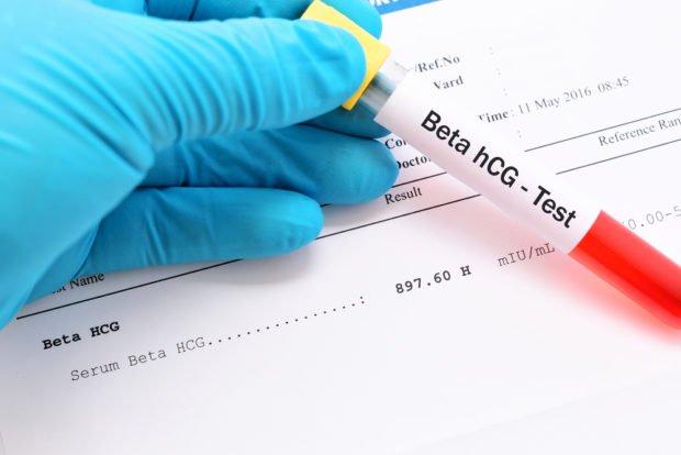 آزمایش بارداری خون